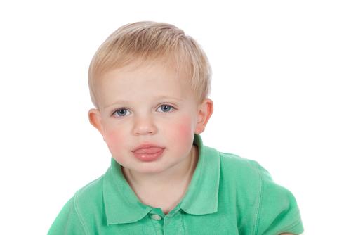 Bild: Ursachen für Lispeln / Sigmatismus
