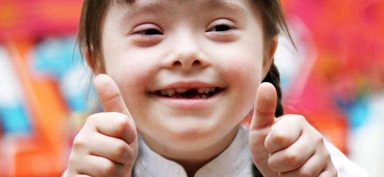 Bild: Down-Syndrom, Trisomie 21